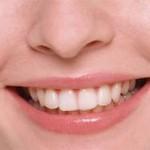 Все о зубах...